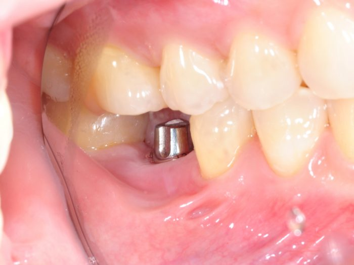 implante dental Madrid capital